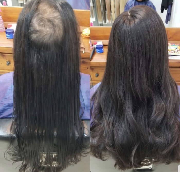 Female Hair Replacement