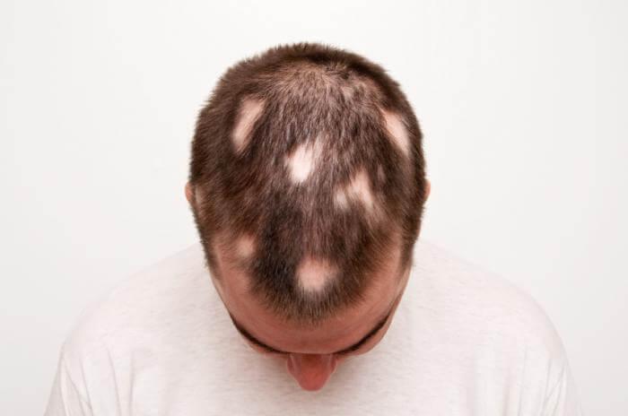 Alopecia Hairloss